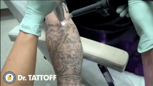 Wie man Tattoos entfernt | Was gelernt | Was is hier eigentlich los? | wihel.de