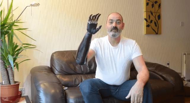Nigel Ackland und sein Terminator-Arm