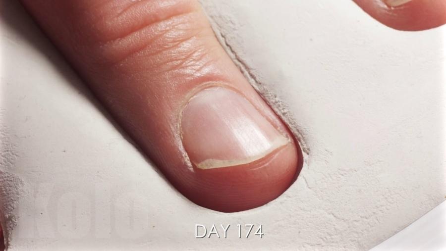 Fingernägel im Zeitraffer beim Wachsen zusehen | Timelapse | Was is hier eigentlich los?
