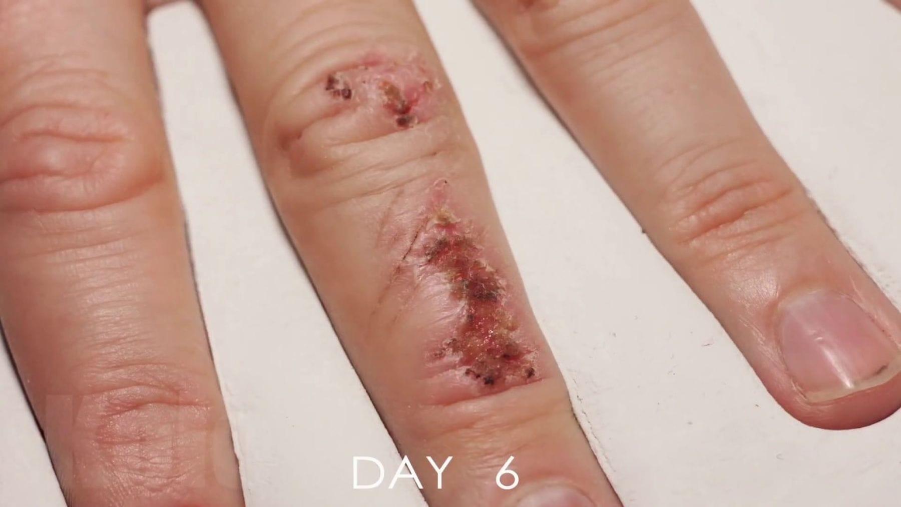 Wie ein Finger im Zeitraffer heilt | Timelapse | Was is hier eigentlich los?